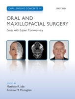 Challenging Concepts in Oral and Maxillo