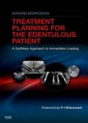 Implant Treatment Planning for the Edent