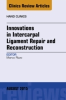 Innovations in Intercarpal Ligament Repa