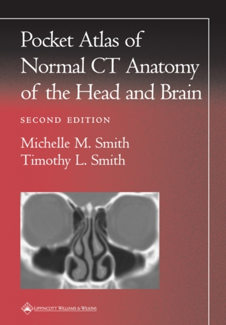 Pocket Atlas of Normal CT Anatomy of the