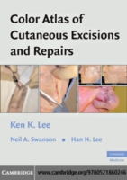 Color Atlas of Cutaneous Excisions and R