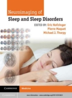 Bilde av Neuroimaging Of Sleep And Sleep Disorder