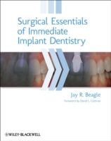 Surgical Essentials of Immediate Implant