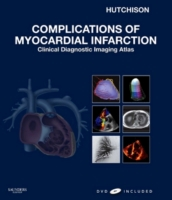 Complications of Myocardial Infarction E