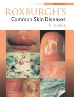 Roxburgh's Common Skin Diseases, 17Ed