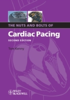 Nuts and Bolts of Cardiac Pacing