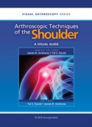 Arthroscopic Techniques of the Shoulder