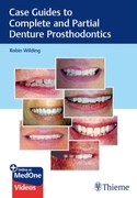 Case Guides to Complete and Partial Dent