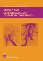 Stroke and Cerebrovascular Disease in Ch